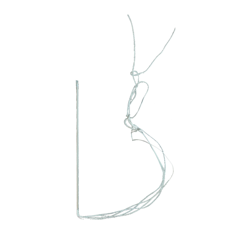 LoopIT Double Loop Lift Implant