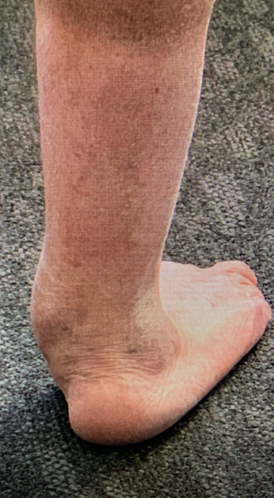 Foot and Ankle Realignment